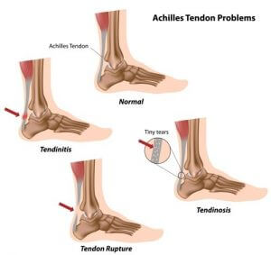 Achilles tendon problems