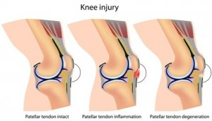 Knee extensor mechanism