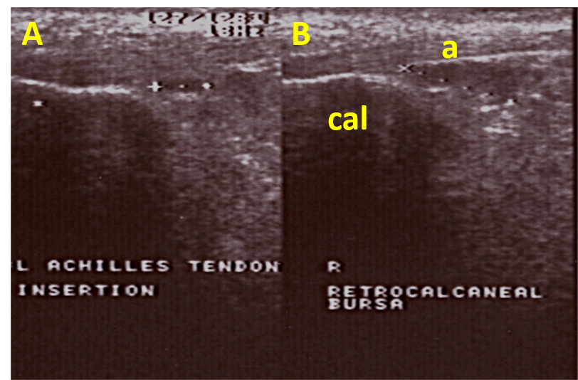Ankle Ultrasound