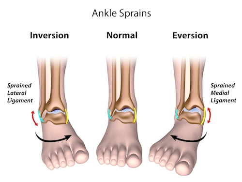 Return to sport: Ankle Rehabilitation