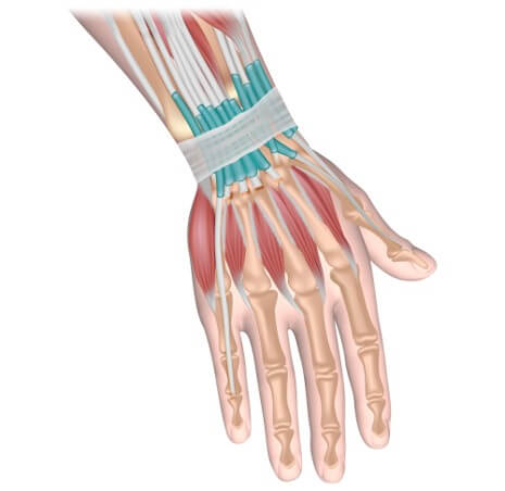 Resisted wrist extension