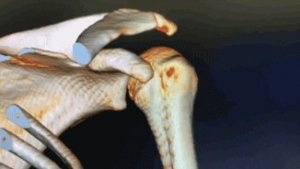 3D CT scan reconstruction of shoulder