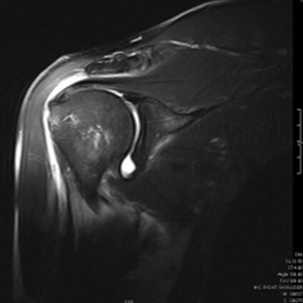 Large Supraspinatus tear