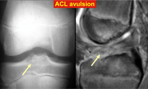 ACL avulsion