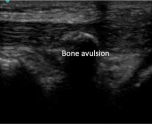 Avulsion bone retracted
