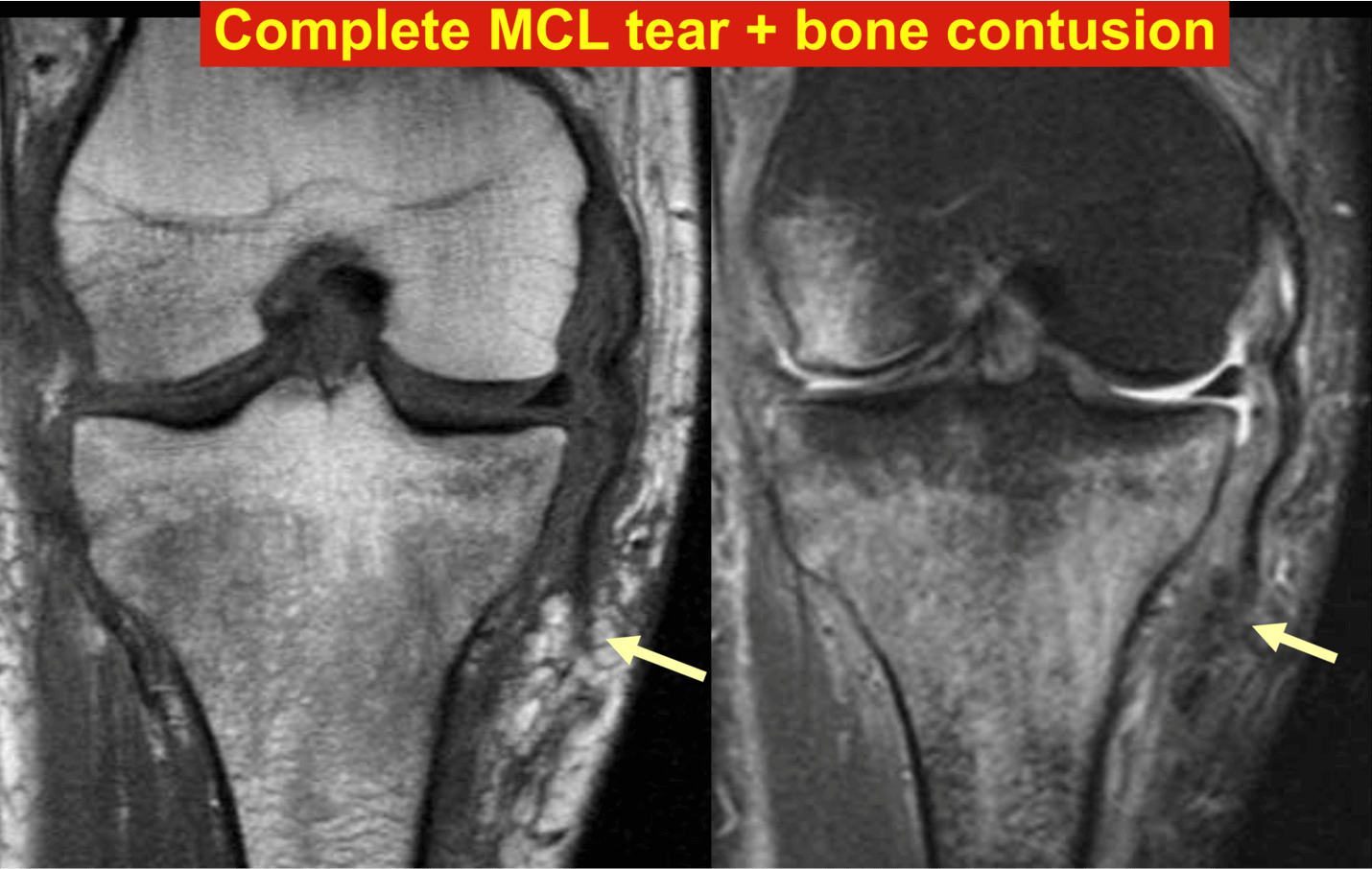 Complete MCL tear and bone contusion