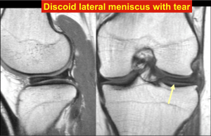Discoid lateral meniscus with tear