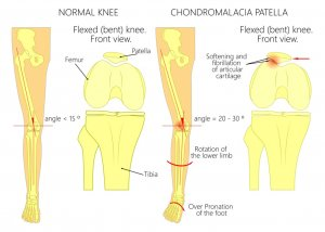 Front View Knee