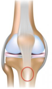Infrapatellar tendinopathy
