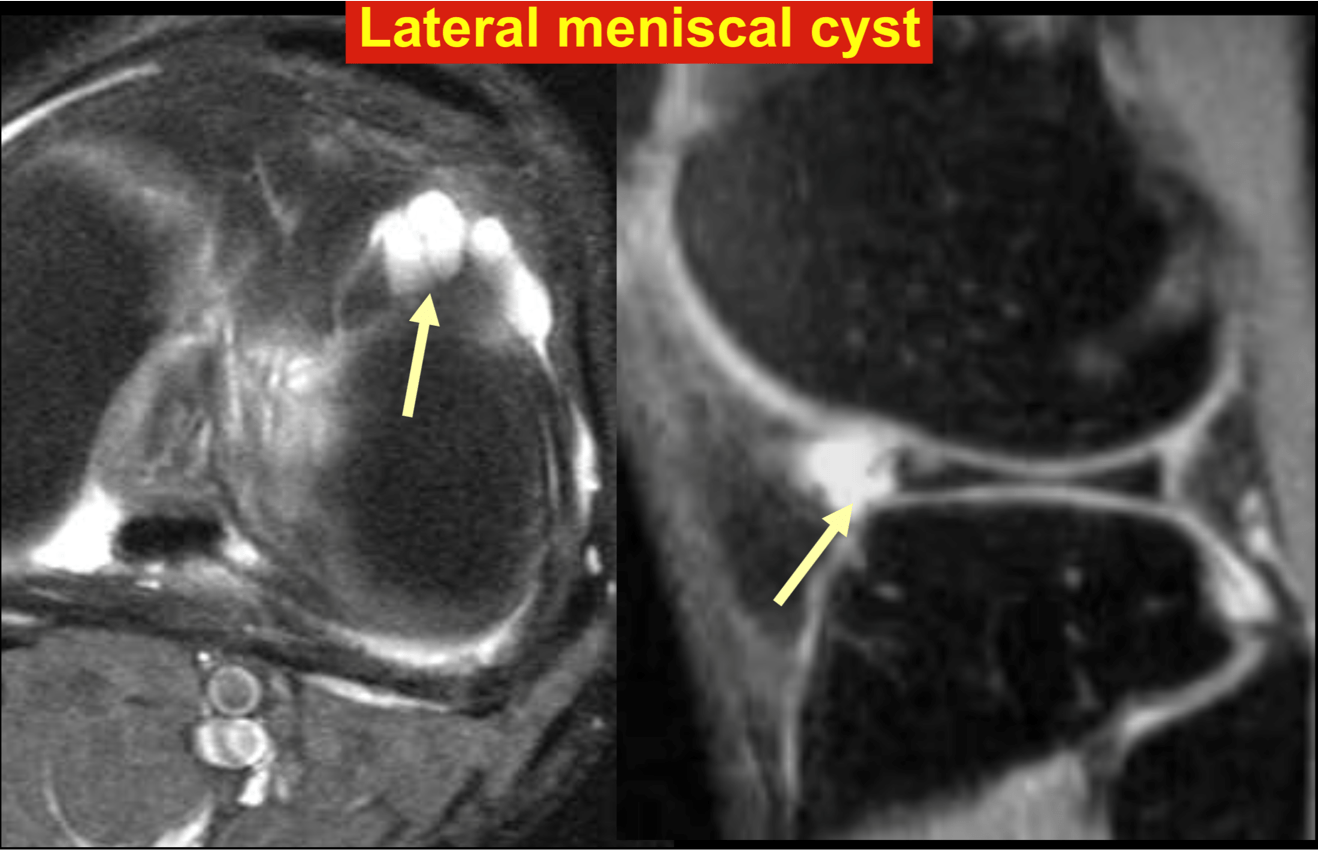 Lateral meniscal cyst