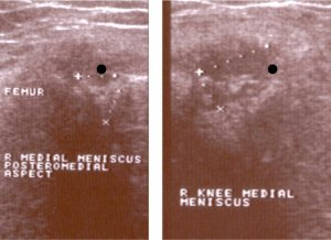 Longitudinal view medial meniscus showing meniscus cyst