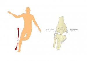 MCL mechanism of injury