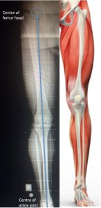 Mechanical axis of lower limb