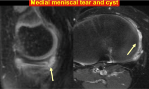 Medial meniscal tear and cyst