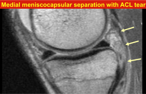 Medial meniscocapsular separation with ACL tear