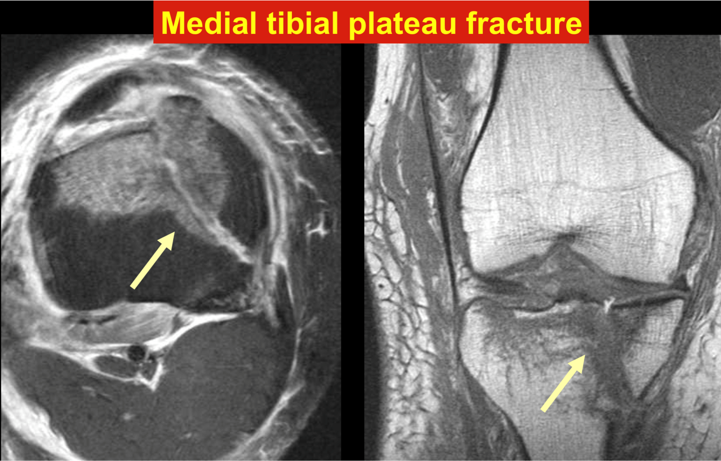 Medial tibial plateau fracture