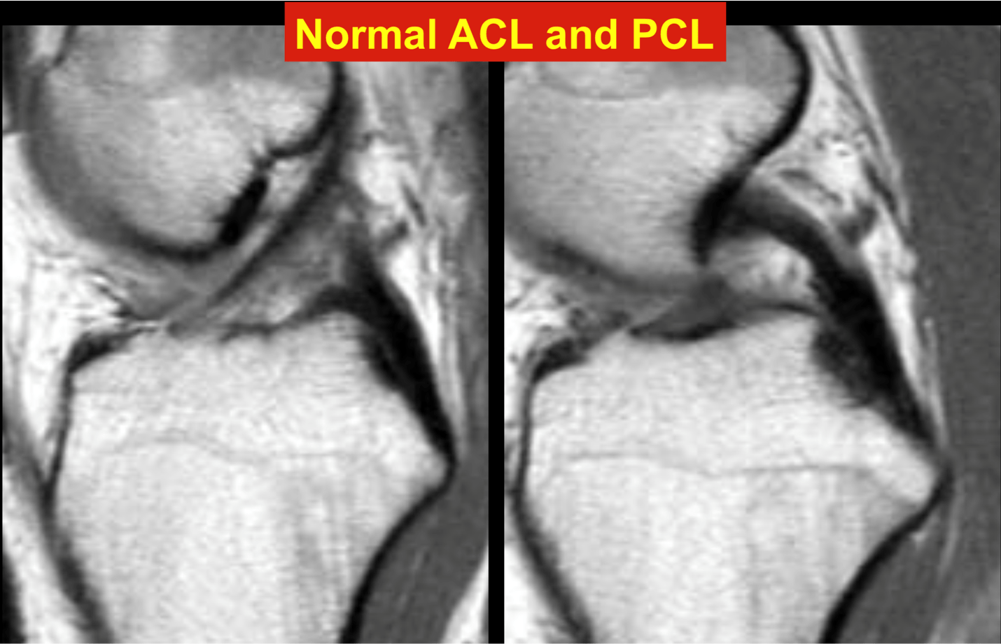 Normal ACL and PCL