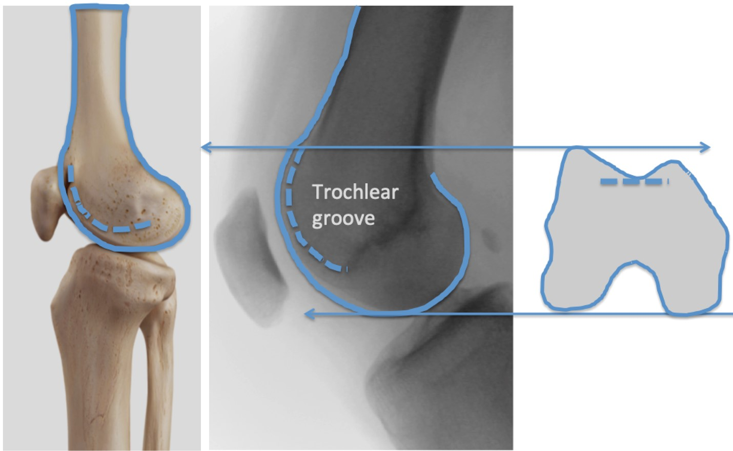 Normal Femur Trochlear