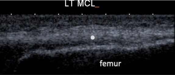Normal MCL at femur insertion