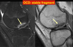 OCD - Stable fragment