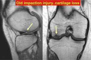 Old impaction injury - Cartilage loss