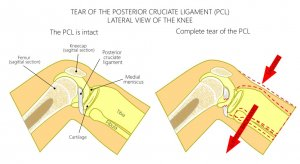 PCL mechanism of injury