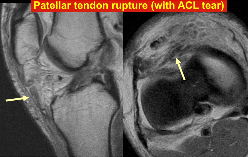 Patellar tendon rupture (with ACL tear)