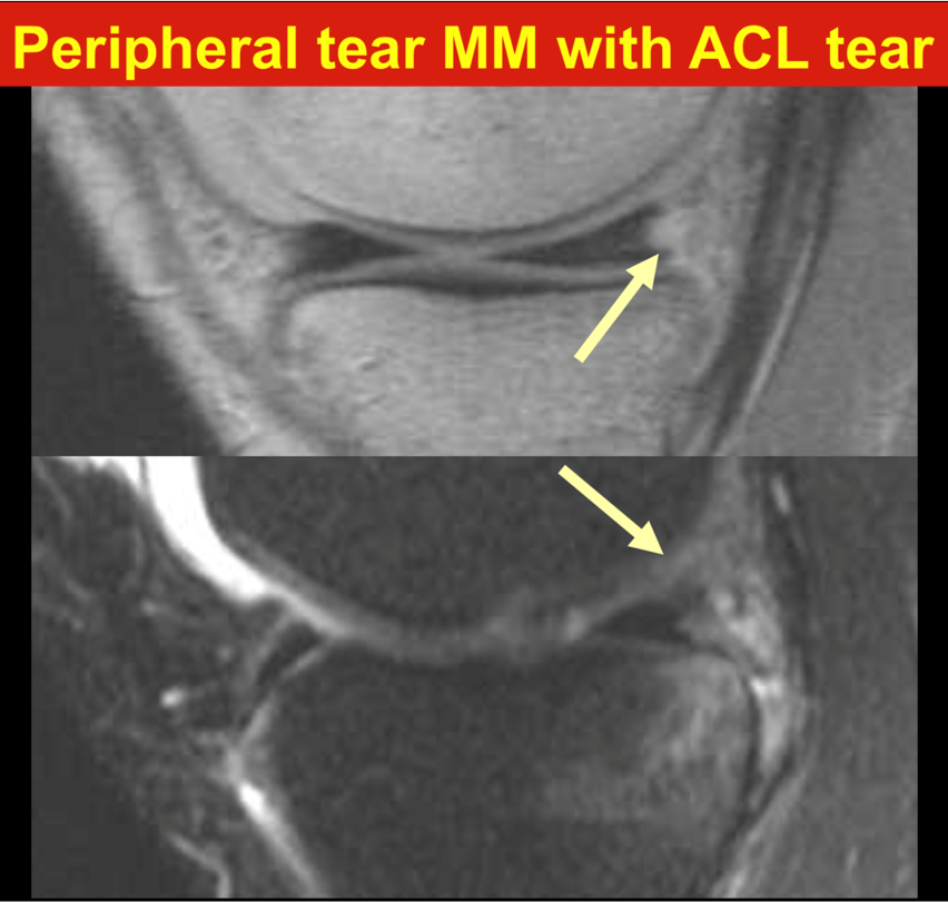 Peripheral tear MM with ACL tear