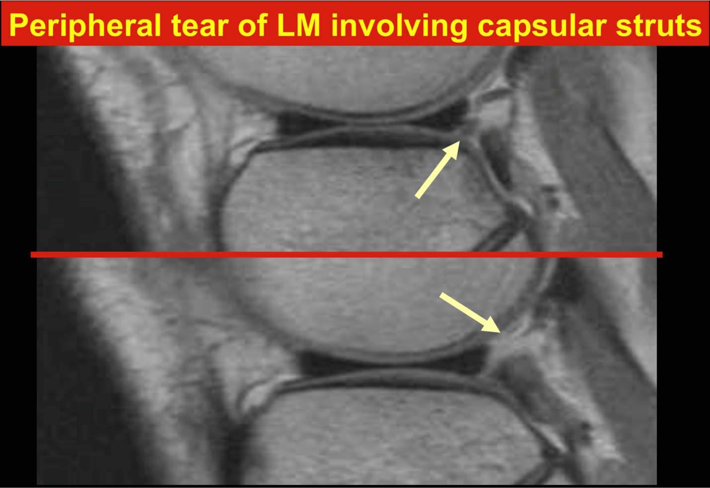 Peripheral tear of LM involving capsular struts