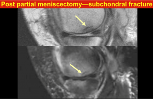 Post partial meniscectomy - subchondral fracture