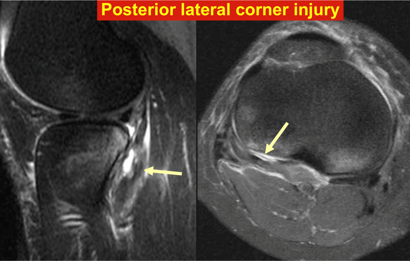 Posterior lateral corner injury