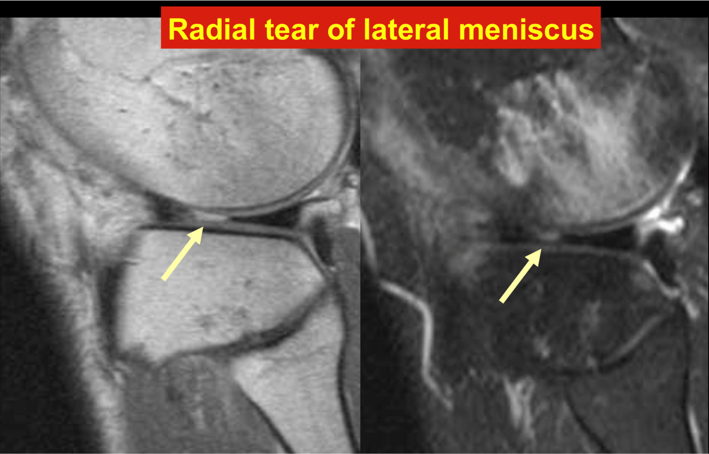 Radial tear of lateral meniscus