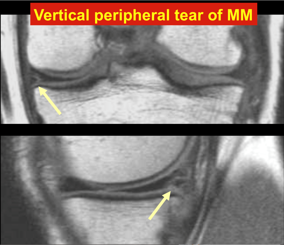 Vertical peripheral tear of MM
