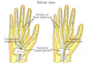 Carpal tunnel syndrome management