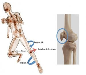 Mechanism of patellar dislocation