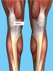 Patellar Femoral joint_Soft tissue