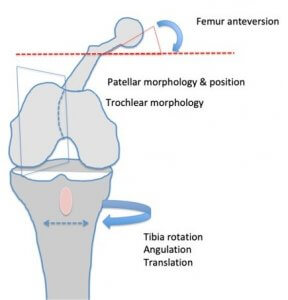 Factors affecting patella tracking