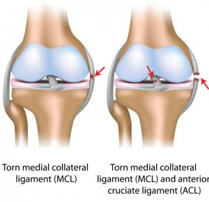 MCL injury classification
