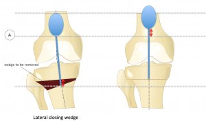 Patella Baja associated with Lateral Closing Wedge