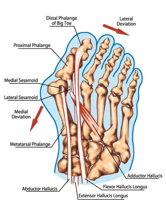Abnormalities in Hallux valgus