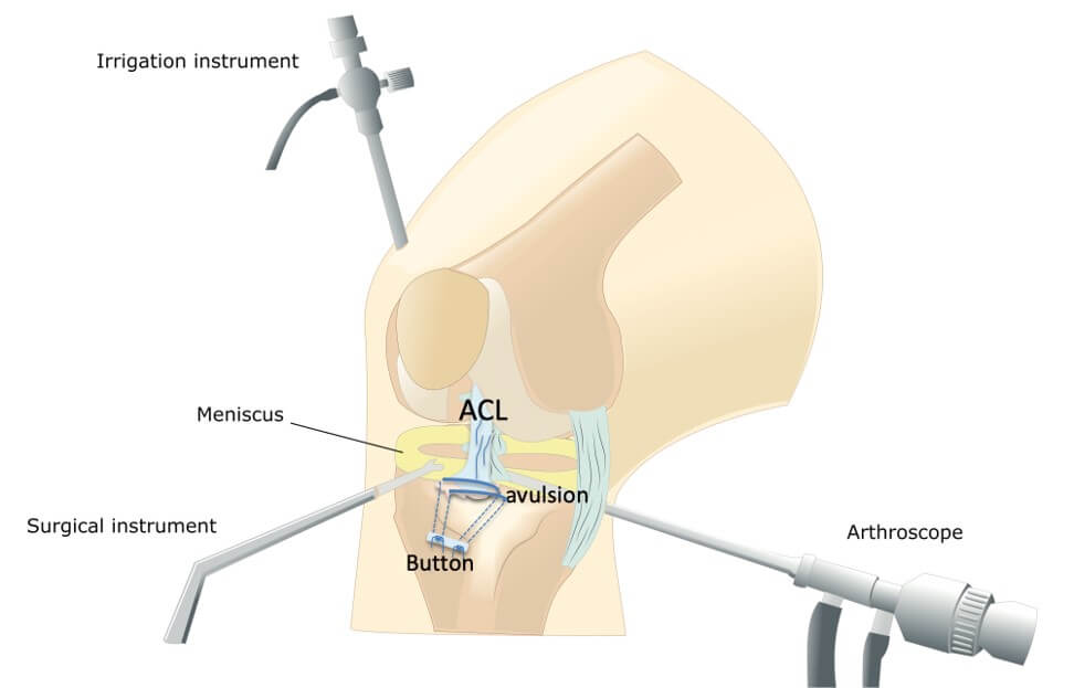 Arthroscopic ACL avulsion surgery repair
