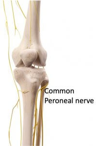 Associated Common Peroneal nerve injury