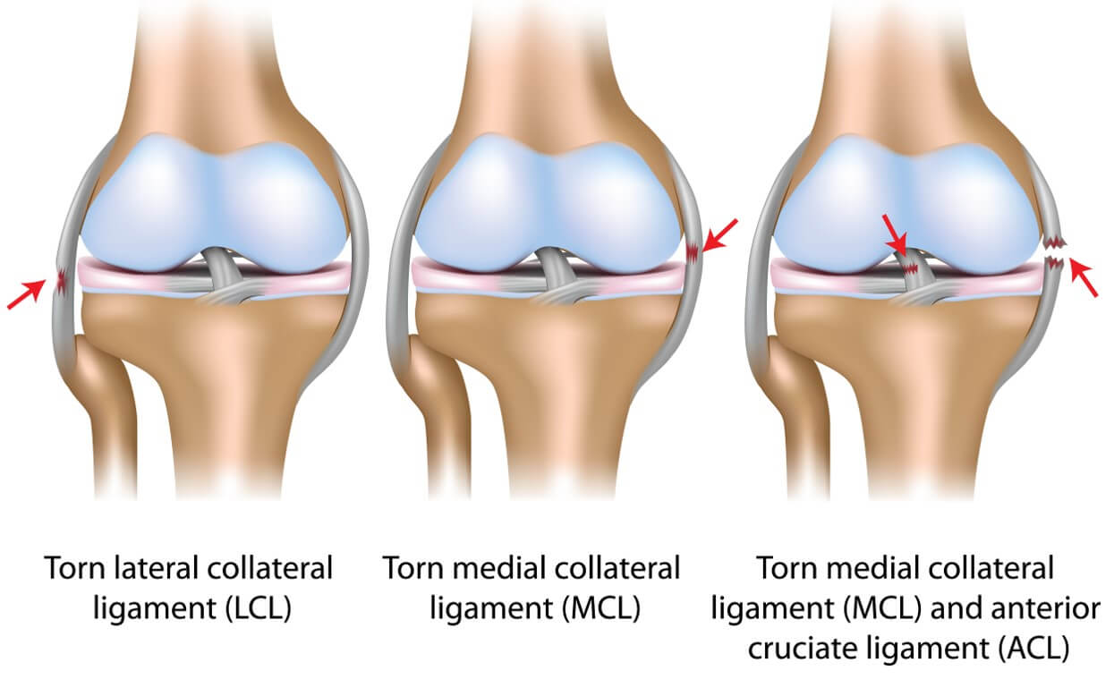 Associated Knee ligament tears
