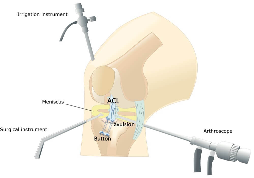 Authors Modified Arthroscopic ACL avulsion surgery repair