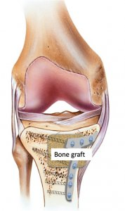 Bone graft with ORIF plate and screw fixation