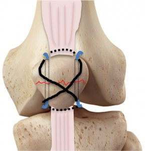 K-wire patellar fixation