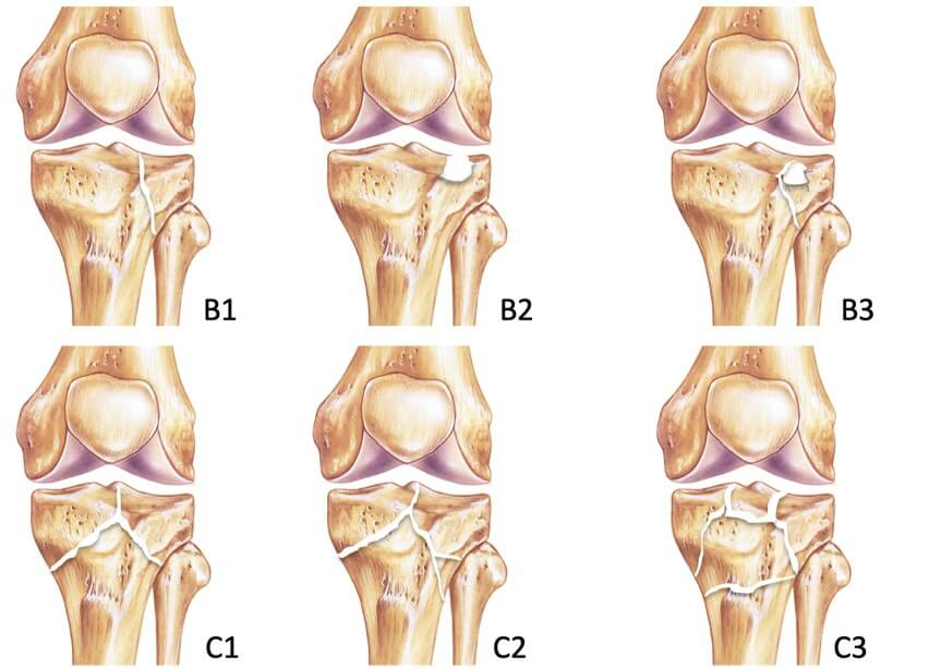 OTA/AO Tibia plateau classification