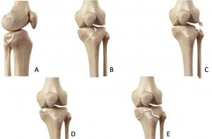 Tibia plateau fracture Moore classification