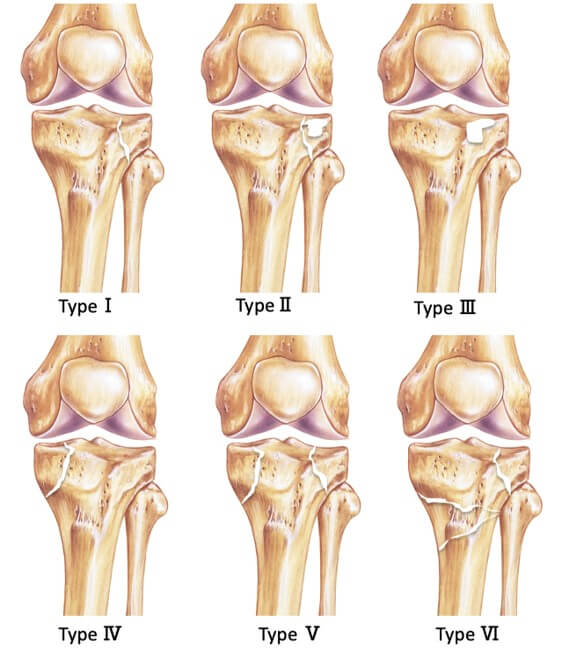 Tibia plateau fracture Schatzker classification