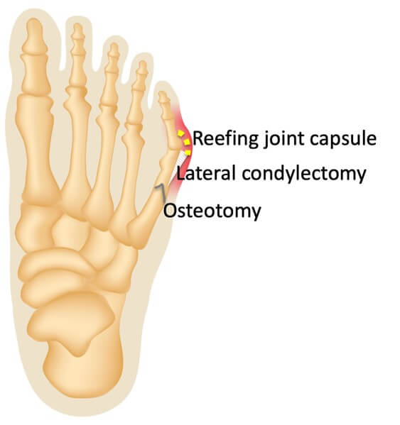 Considerations for correcting Tailors Bunion